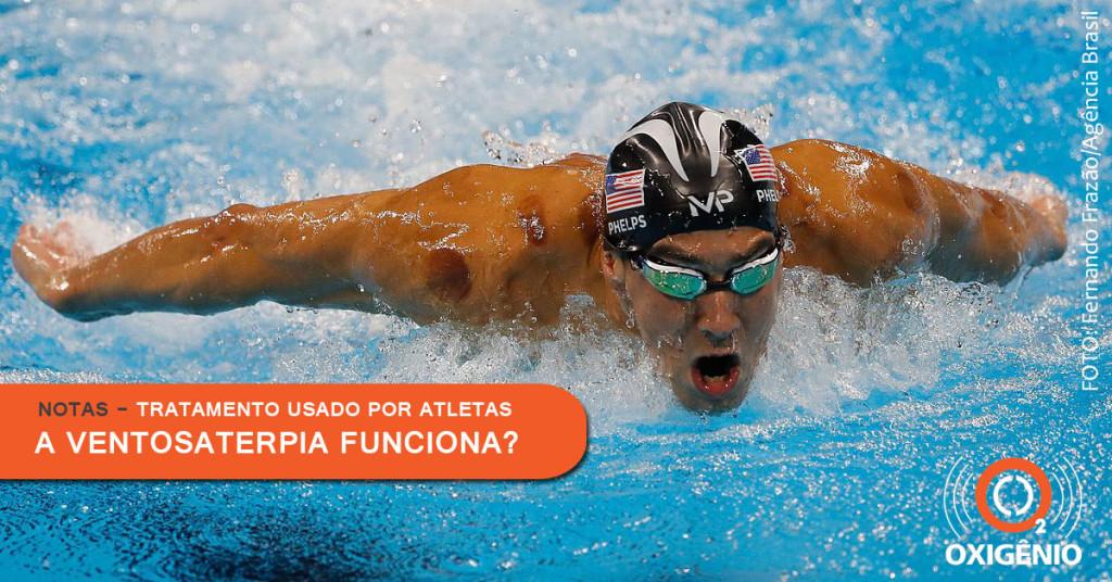 Polêmico tratamento para dor muscular é destaque nos Jogos Olimpicos